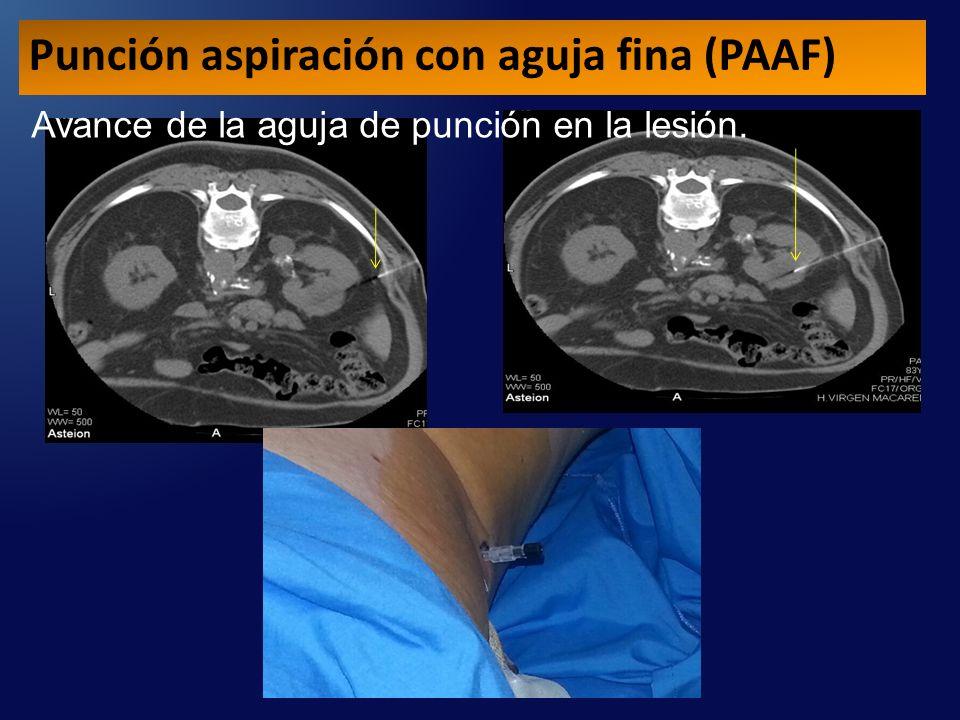 Avance de la aguja de punción en la lesión. Punción aspiración con aguja fina (PAAF)