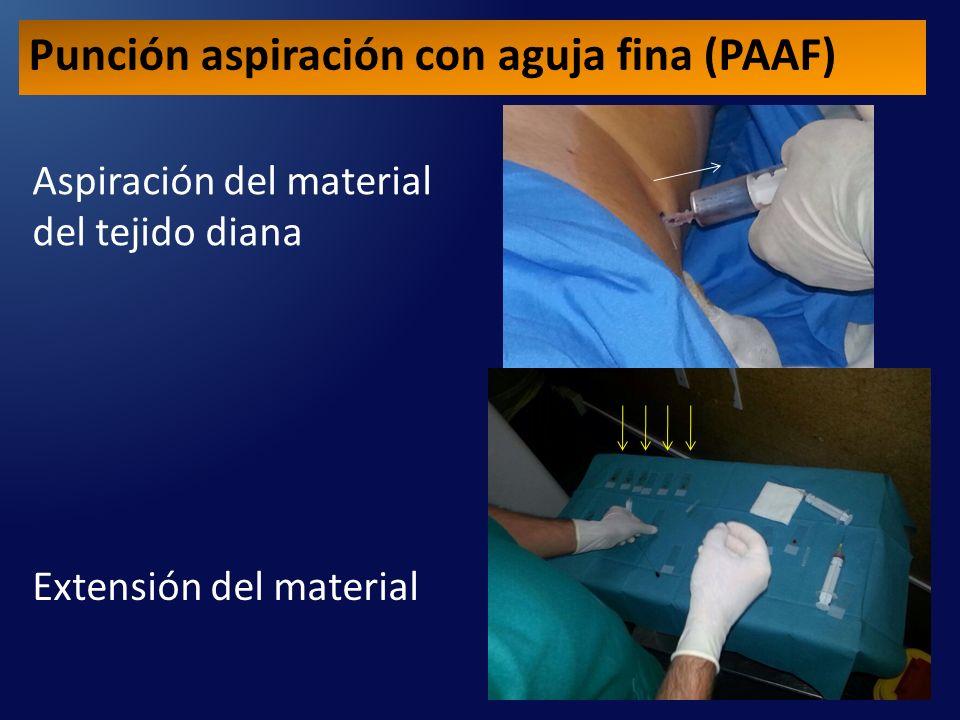 Aspiración del material del tejido diana Extensión del material Punción aspiración con aguja fina (PAAF)