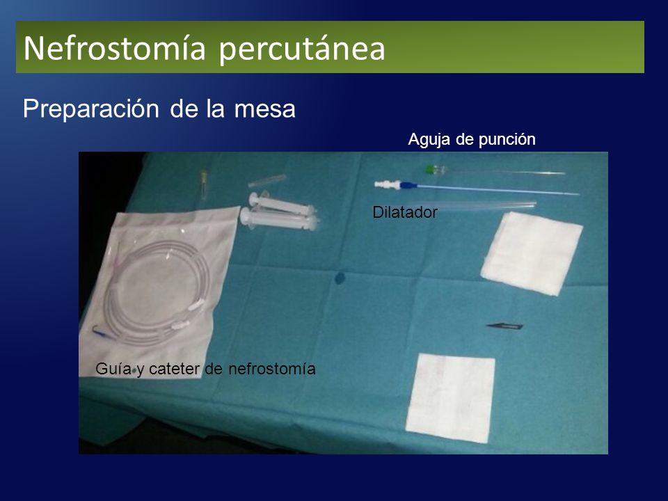 Nefrostomía percutánea Preparación de la mesa Guía y cateter de nefrostomía Aguja de punción Dilatador