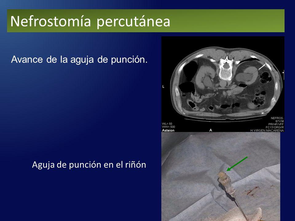 Avance de la aguja de punción. Aguja de punción en el riñón Nefrostomía percutánea