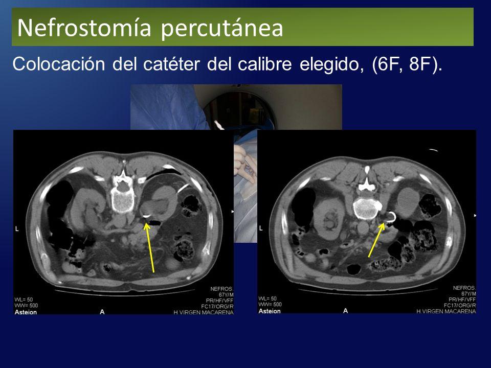 Colocación del catéter del calibre elegido, (6F, 8F). Nefrostomía percutánea