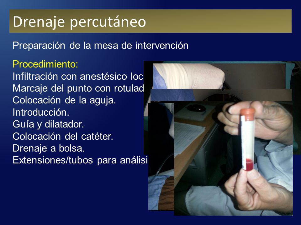 Drenaje percutáneo Preparación de la mesa de intervención Procedimiento: Infiltración con anestésico local.