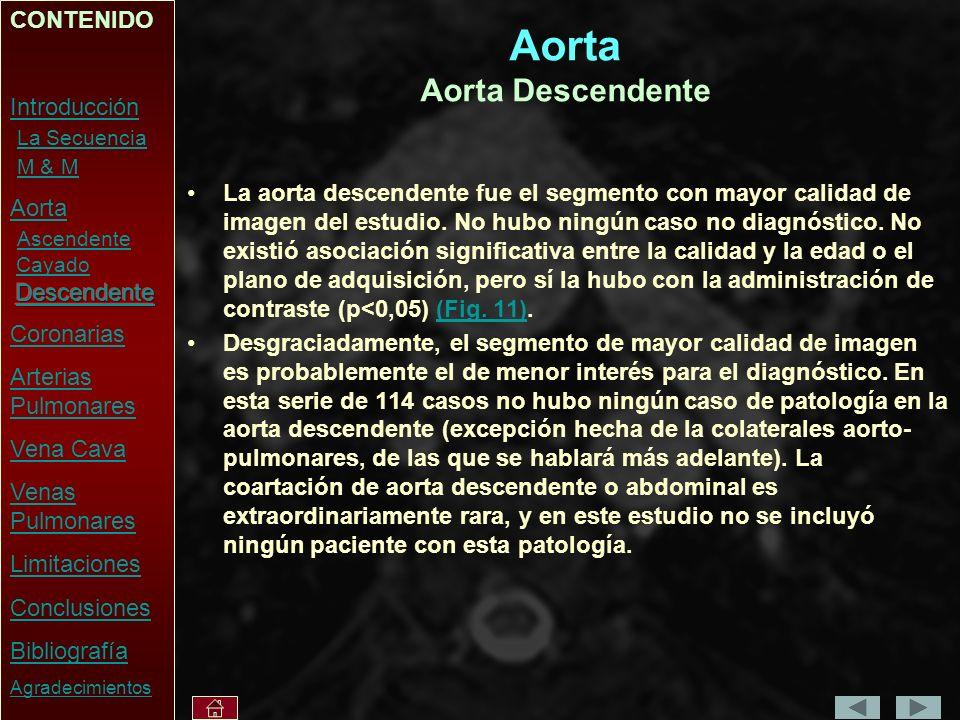 Aorta Aorta Descendente La aorta descendente fue el segmento con mayor calidad de imagen del estudio.