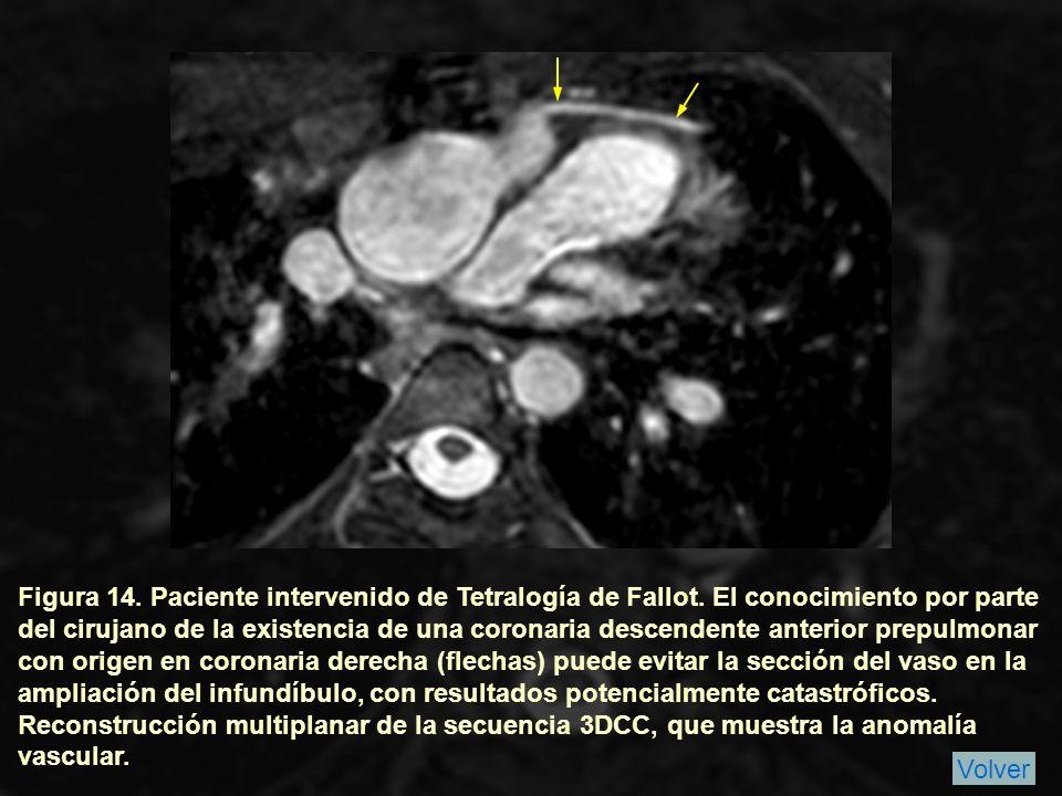 Figura 14.Paciente intervenido de Tetralogía de Fallot.