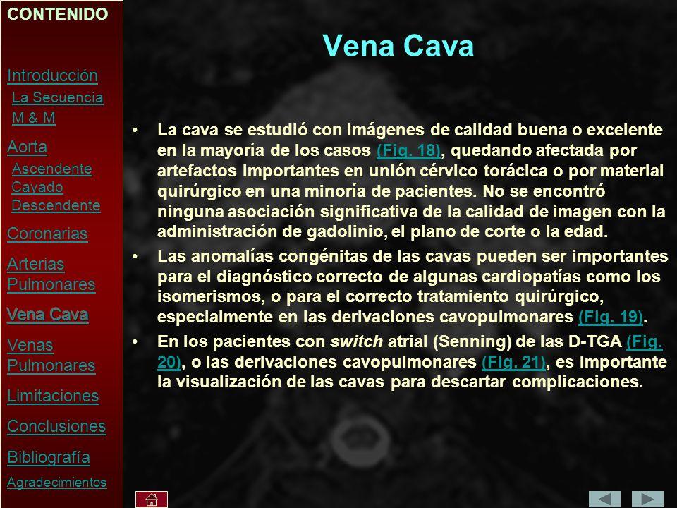 Vena Cava La cava se estudió con imágenes de calidad buena o excelente en la mayoría de los casos (Fig.