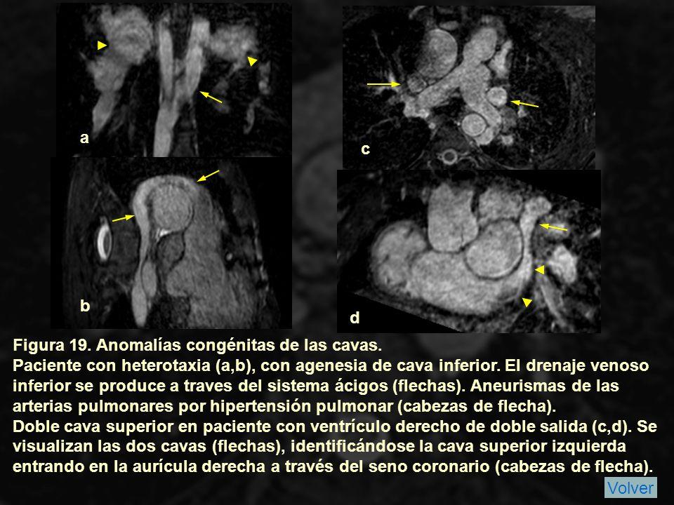 Figura 19.Anomalías congénitas de las cavas.