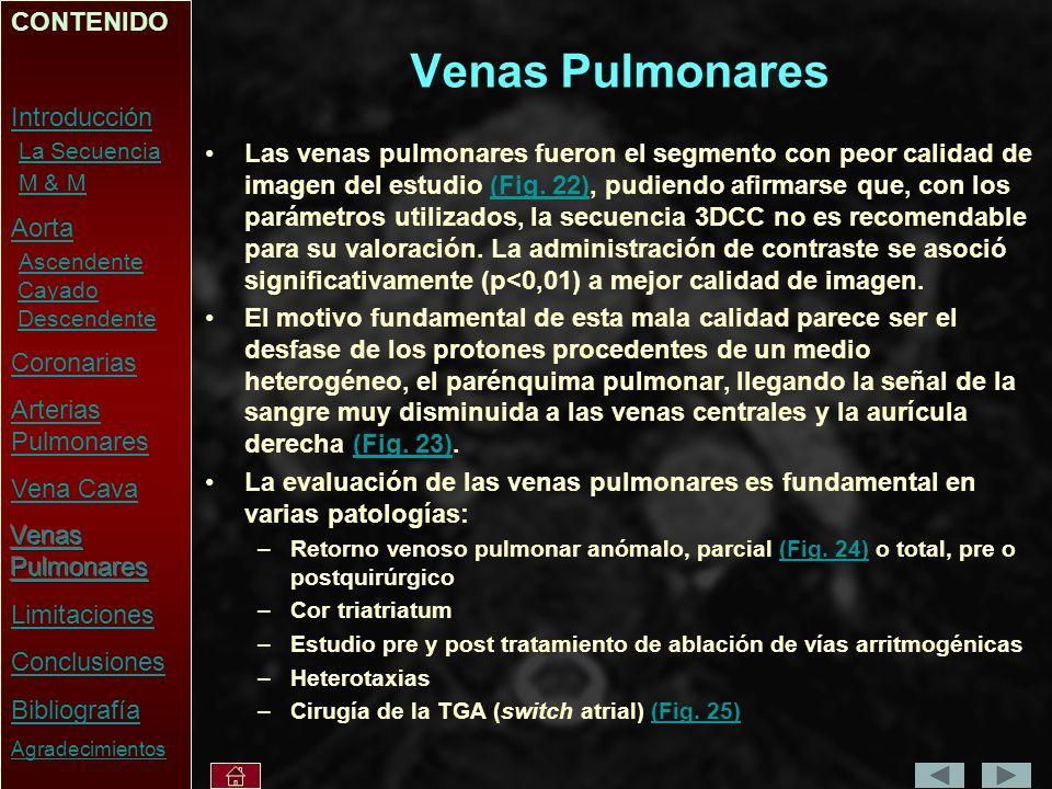 Venas Pulmonares Las venas pulmonares fueron el segmento con peor calidad de imagen del estudio (Fig.
