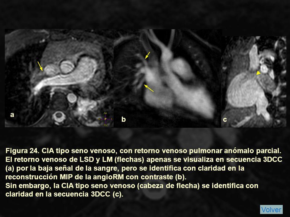 Figura 24.CIA tipo seno venoso, con retorno venoso pulmonar anómalo parcial.