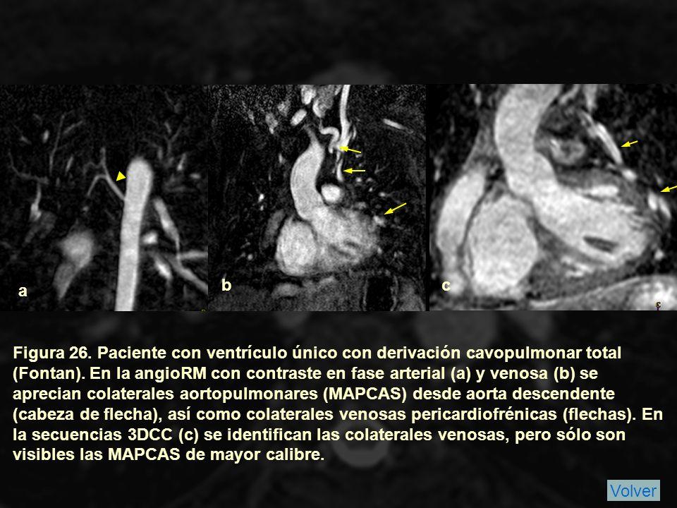 Figura 26.Paciente con ventrículo único con derivación cavopulmonar total (Fontan).