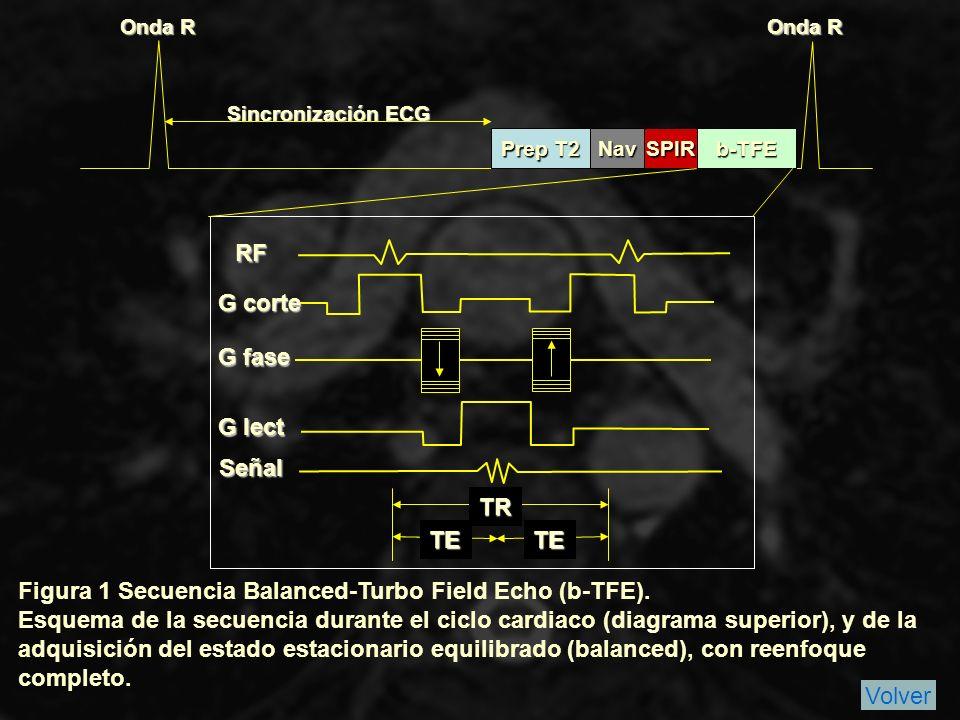 Figura 1 Secuencia Balanced-Turbo Field Echo (b-TFE).