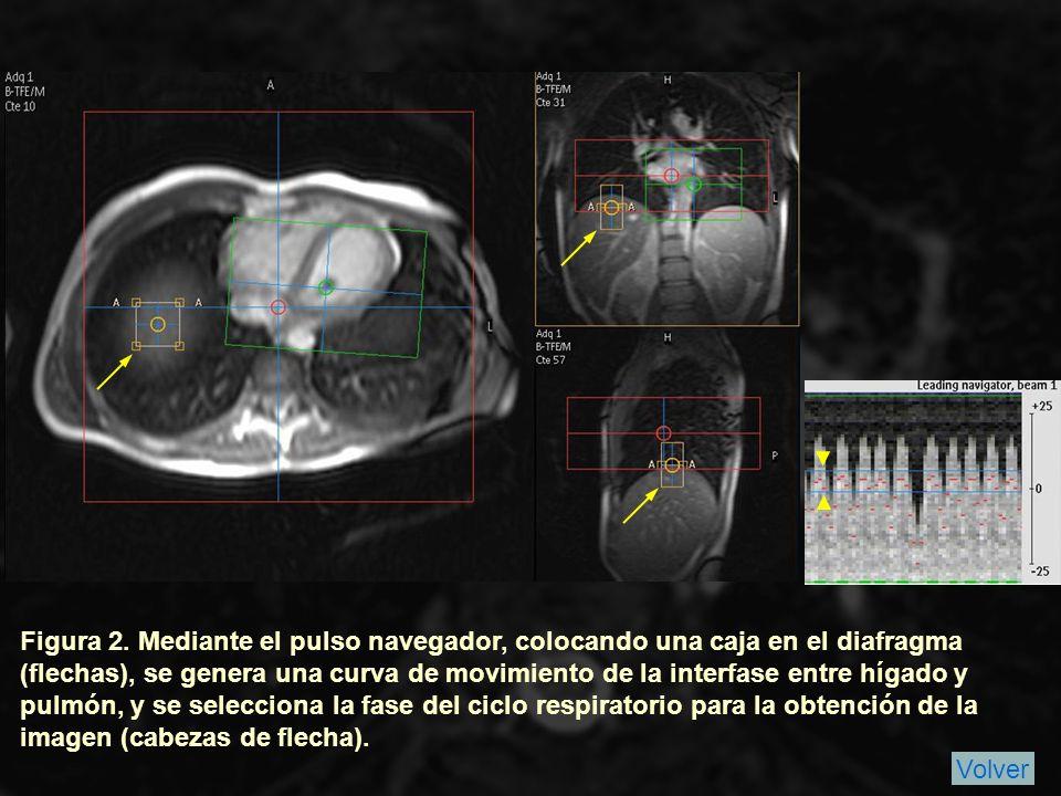 Introducción Material y Métodos Revisamos retrospectivamente los estudios de nuestra base de datos de RM cardiaca desde junio de 2009 (cuando comenzamos a utilizar la secuencia de forma habitual) hasta diciempre de 2009, obteniendo 114 casos (Fig.
