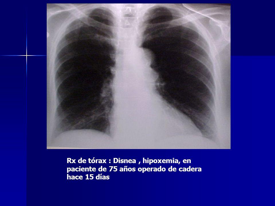 Rx de tórax : Disnea, hipoxemia, en paciente de 75 años operado de cadera hace 15 días