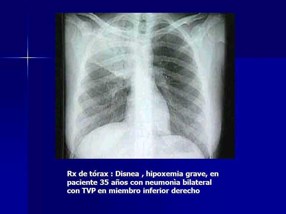 Rx de tórax : Disnea, hipoxemia grave, en paciente 35 años con neumonìa bilateral con TVP en miembro inferior derecho