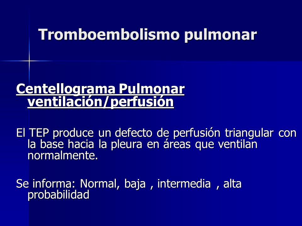 Tromboembolismo pulmonar Centellograma Pulmonar ventilación/perfusión El TEP produce un defecto de perfusión triangular con la base hacia la pleura en