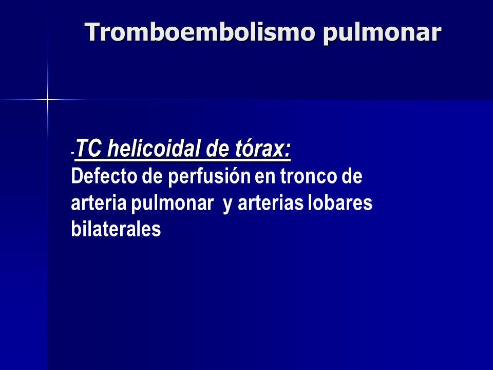 TC helicoidal de tórax: - TC helicoidal de tórax: Defecto de perfusión en tronco de arteria pulmonar y arterias lobares bilaterales Tromboembolismo pu