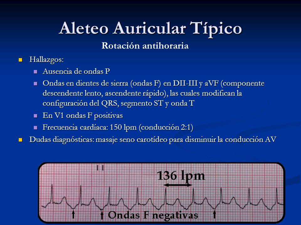 Aleteo Auricular Típico Hallazgos: Hallazgos: Ausencia de ondas P Ausencia de ondas P Ondas en dientes de sierra (ondas F) en DII-III y aVF (component