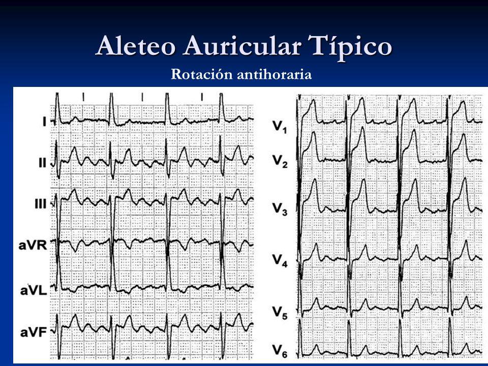 Aleteo Auricular Típico Rotación antihoraria