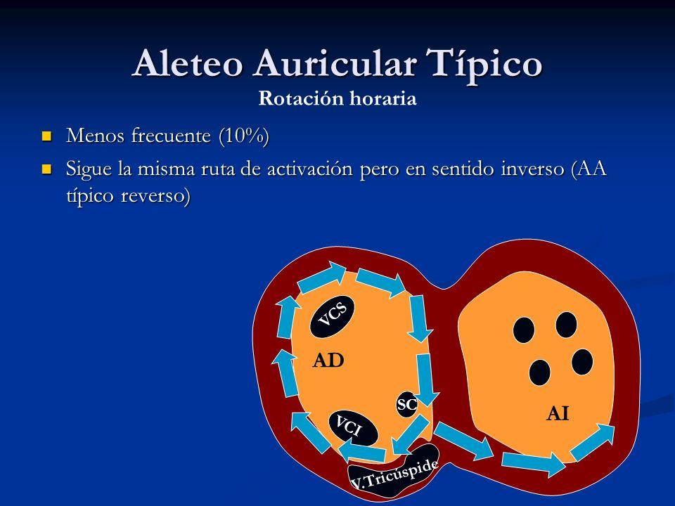 Aleteo Auricular Típico Menos frecuente (10%) Menos frecuente (10%) Sigue la misma ruta de activación pero en sentido inverso (AA típico reverso) Sigu