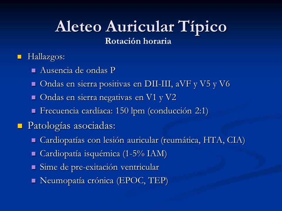 Aleteo Auricular Típico Hallazgos: Hallazgos: Ausencia de ondas P Ausencia de ondas P Ondas en sierra positivas en DII-III, aVF y V5 y V6 Ondas en sie