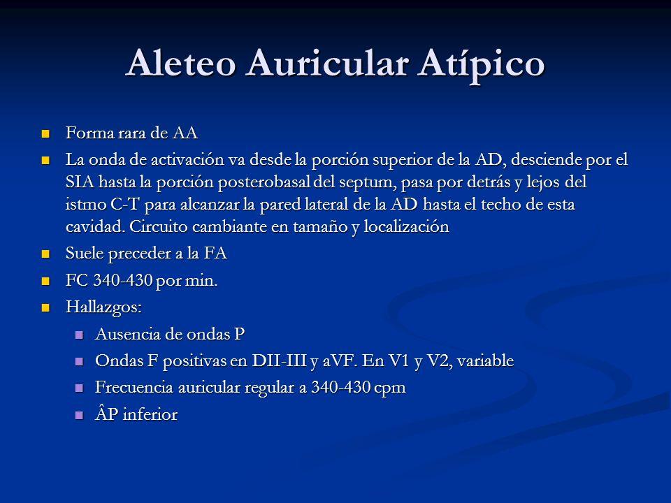 Aleteo Auricular Atípico Forma rara de AA Forma rara de AA La onda de activación va desde la porción superior de la AD, desciende por el SIA hasta la