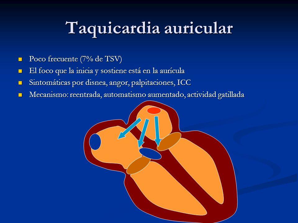 Taquicardia auricular Poco frecuente (7% de TSV) Poco frecuente (7% de TSV) El foco que la inicia y sostiene está en la aurícula El foco que la inicia