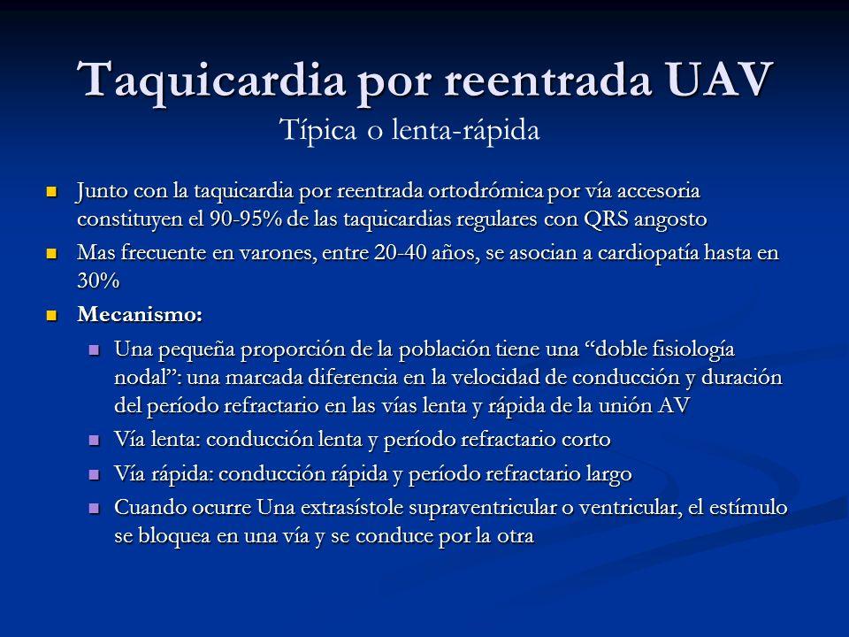 Junto con la taquicardia por reentrada ortodrómica por vía accesoria constituyen el 90-95% de las taquicardias regulares con QRS angosto Junto con la