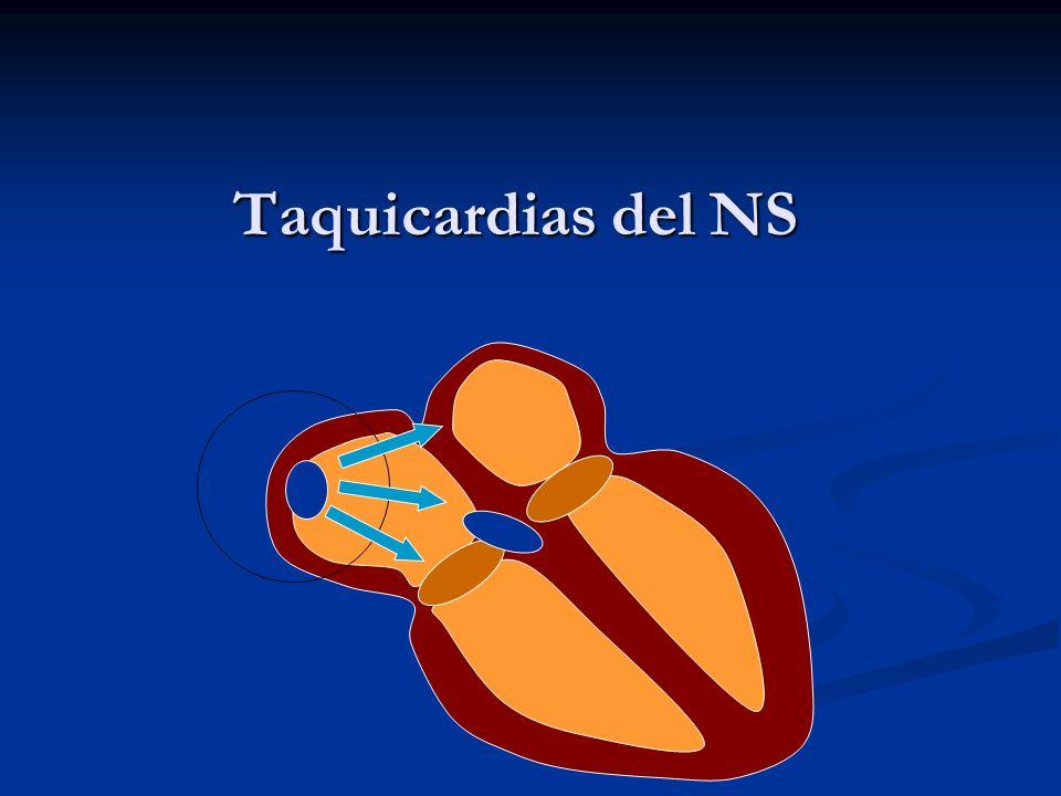 Taquicardias del NS