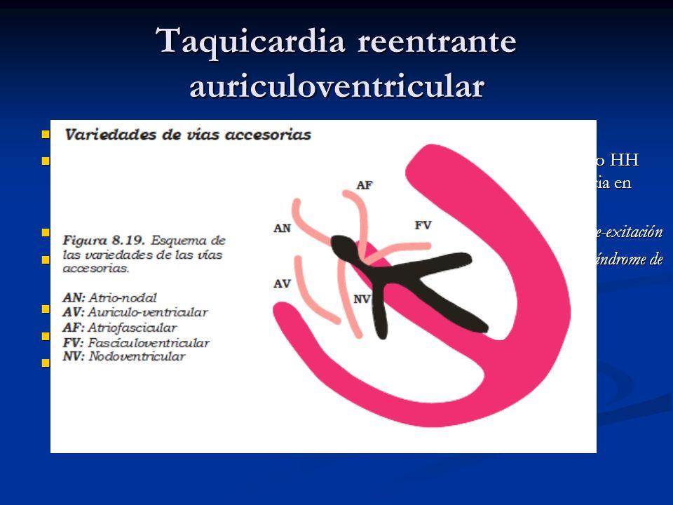 Taquicardia reentrante auriculoventricular Es la segunda forma mas frecuente de TPSV Es la segunda forma mas frecuente de TPSV Se presenta en paciente