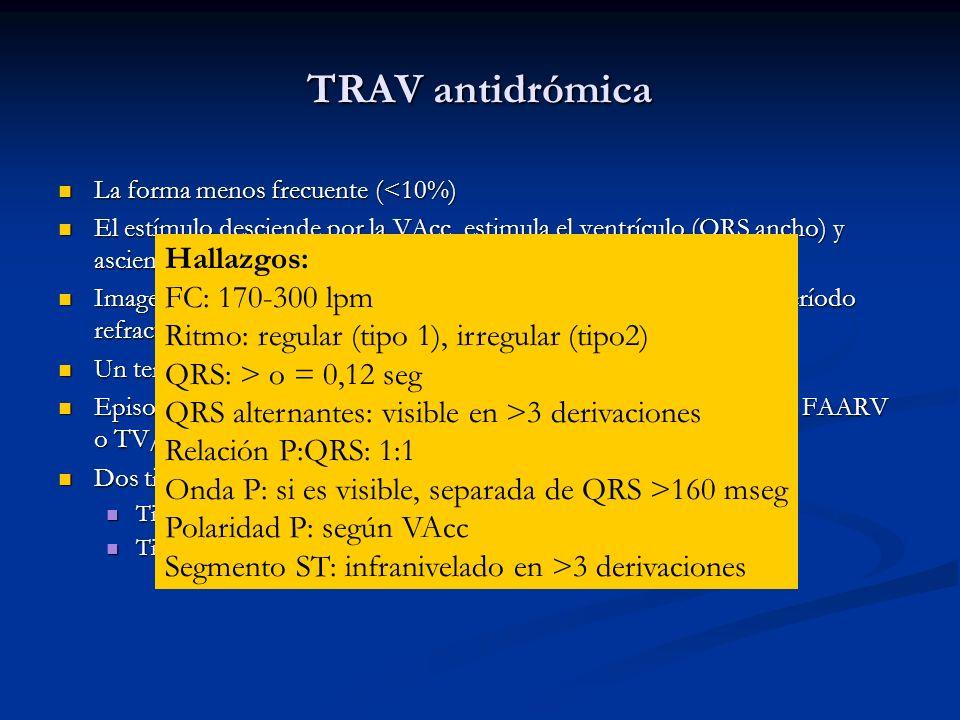 TRAV antidrómica La forma menos frecuente (<10%) La forma menos frecuente (<10%) El estímulo desciende por la VAcc, estimula el ventrículo (QRS ancho)