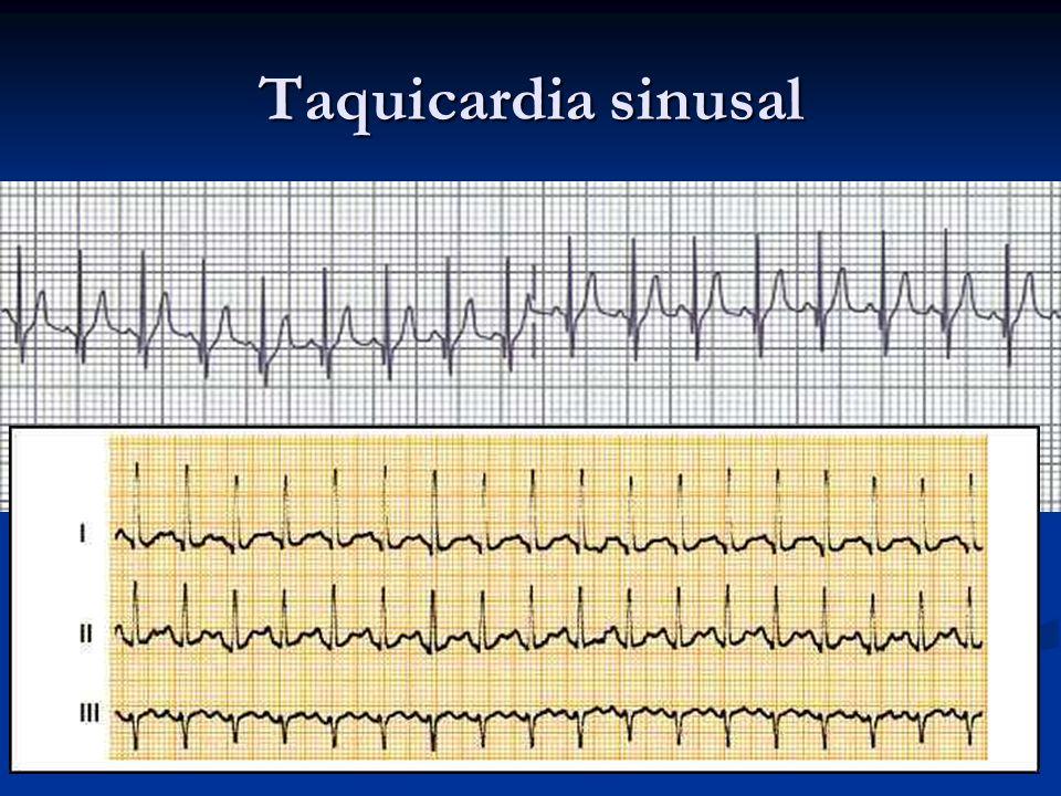 Taquicardia sinusal Es el resultado de la respuesta a la estimulación simpática o a la depresión de la actividad vagal, con mayor automatismo del NS E