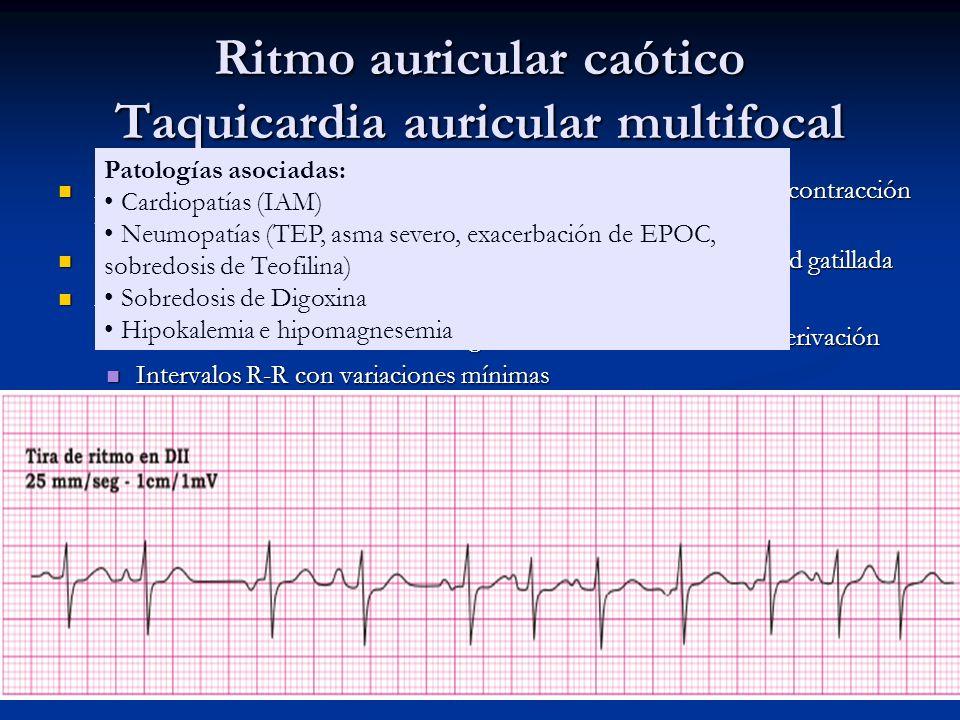 Ritmo auricular caótico Taquicardia auricular multifocal Hay varios focos auriculares que originan los impulsos que rigen la contracción auricular, qu