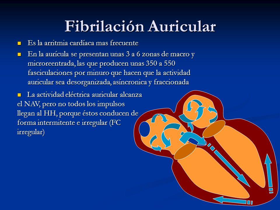 Fibrilación Auricular Es la arritmia cardíaca mas frecuente Es la arritmia cardíaca mas frecuente En la aurícula se presentan unas 3 a 6 zonas de macr