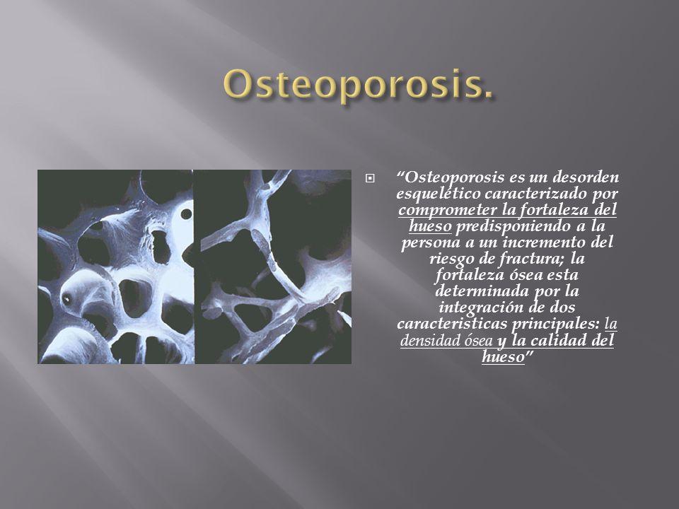 Osteoporosis es un desorden esquelético caracterizado por comprometer la fortaleza del hueso predisponiendo a la persona a un incremento del riesgo de