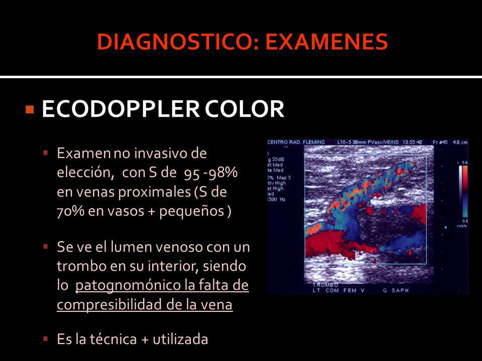ECODOPPLER COLOR Examen no invasivo de elección, con S de 95 -98% en venas proximales (S de 70% en vasos + pequeños ) Se ve el lumen venoso con un tro