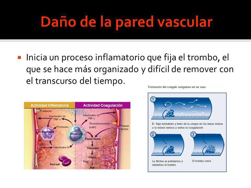 Inicia un proceso inflamatorio que fija el trombo, el que se hace más organizado y difícil de remover con el transcurso del tiempo.