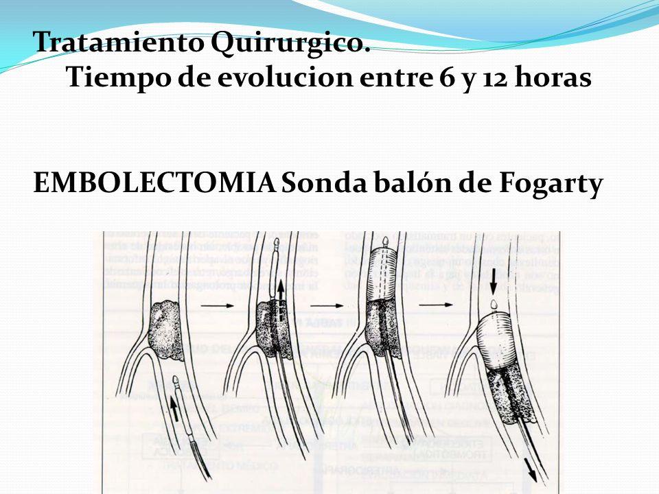 Tratamiento Quirurgico. Tiempo de evolucion entre 6 y 12 horas EMBOLECTOMIA Sonda balón de Fogarty