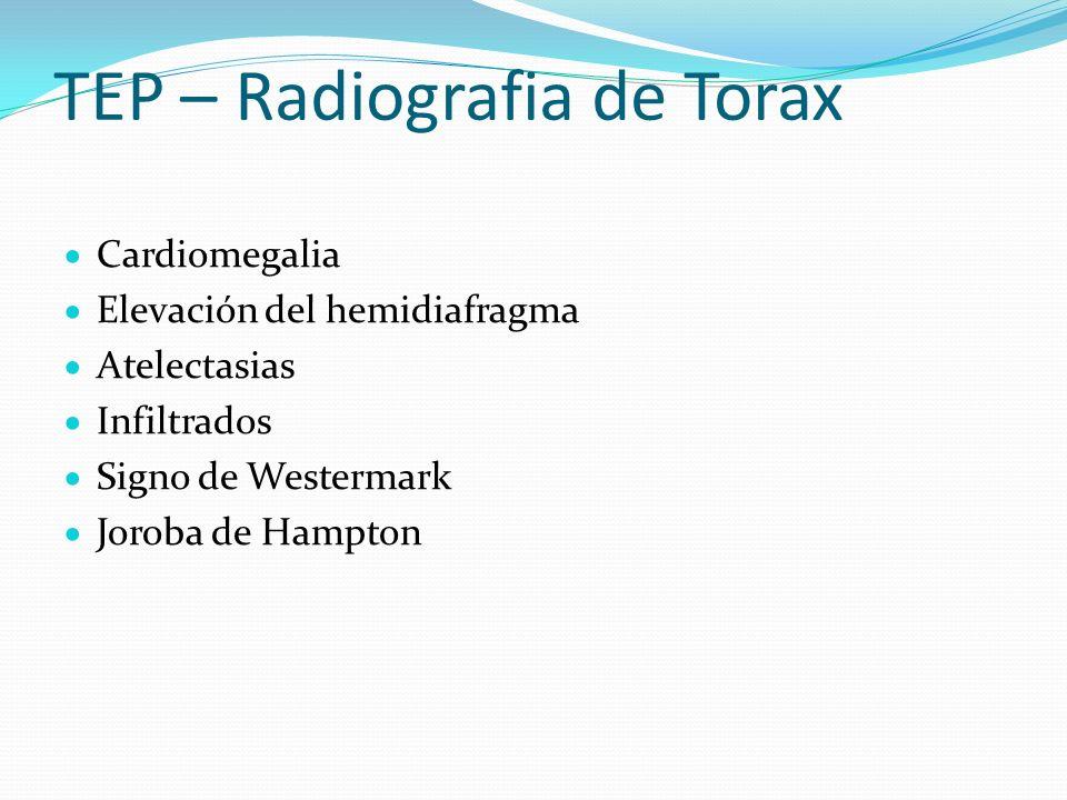 TEP – Radiografia de Torax Cardiomegalia Elevación del hemidiafragma Atelectasias Infiltrados Signo de Westermark Joroba de Hampton