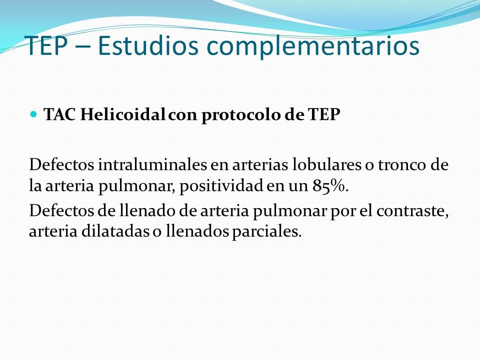 TEP – Estudios complementarios TAC Helicoidal con protocolo de TEP Defectos intraluminales en arterias lobulares o tronco de la arteria pulmonar, positividad en un 85%.