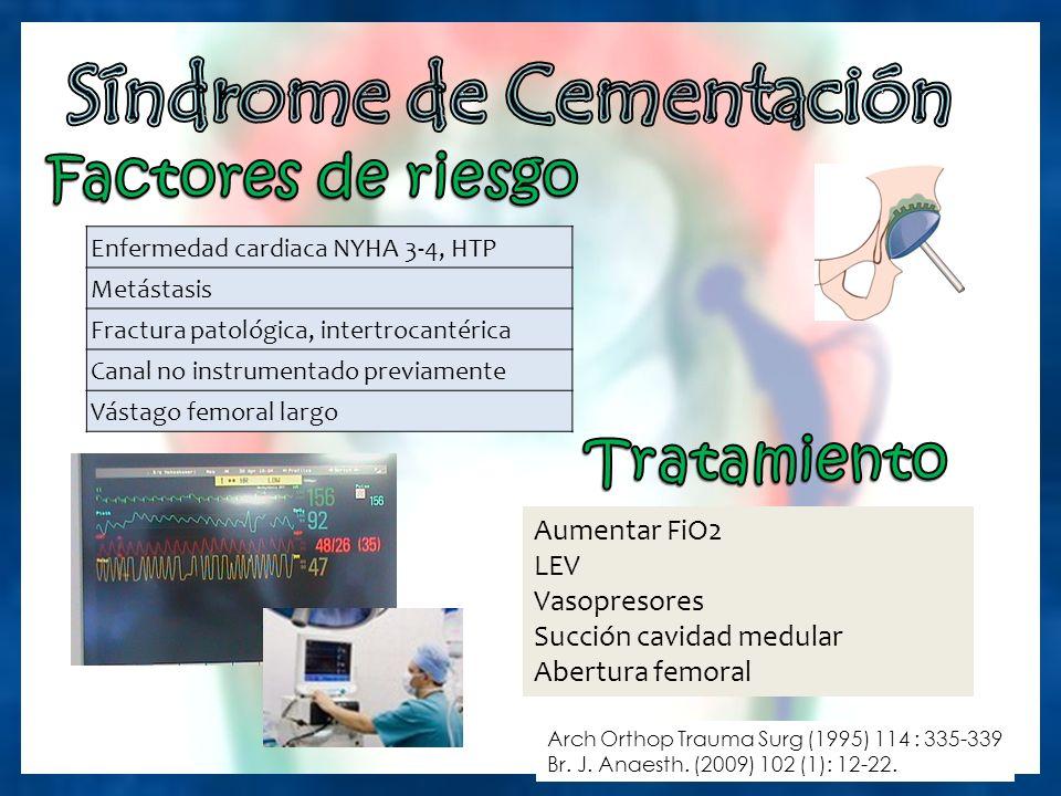 Enfermedad cardiaca NYHA 3-4, HTP Metástasis Fractura patológica, intertrocantérica Canal no instrumentado previamente Vástago femoral largo Arch Orthop Trauma Surg (1995) 114 : 335-339 Br.