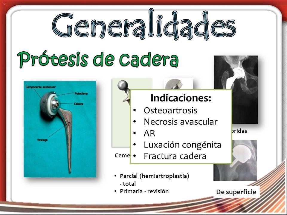 CementadasNo cementadas Híbridas De superficie Indicaciones: Osteoartrosis Necrosis avascular AR Luxación congénita Fractura cadera Parcial (hemiartroplastia) - total Primaria - revisión