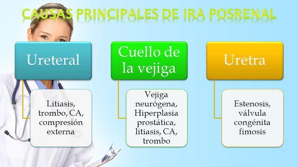 Ureteral Litiasis, trombo, CA, compresión externa Cuello de la vejiga Vejiga neurógena, Hiperplasia prostática, litiasis, CA, trombo Uretra Estenosis,