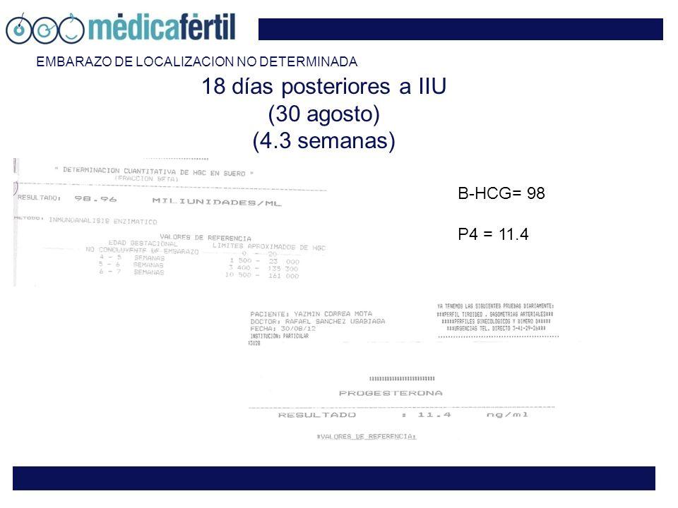 18 días posteriores a IIU (30 agosto) (4.3 semanas) B-HCG= 98 P4 = 11.4 EMBARAZO DE LOCALIZACION NO DETERMINADA