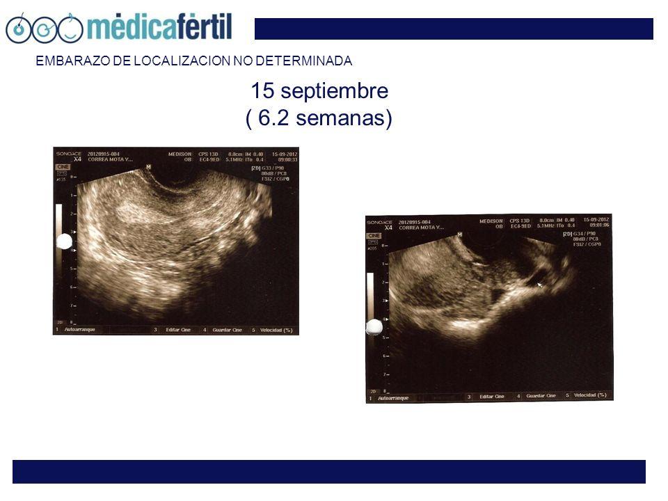 15 septiembre ( 6.2 semanas) EMBARAZO DE LOCALIZACION NO DETERMINADA