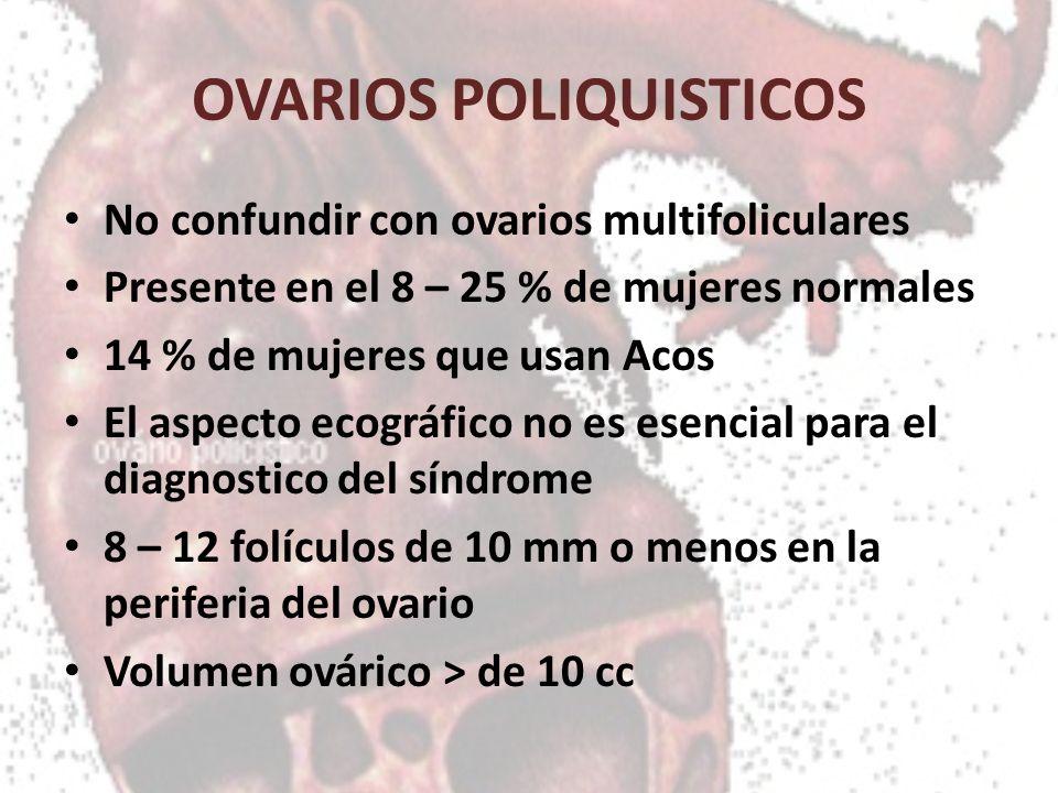OVARIOS POLIQUISTICOS No confundir con ovarios multifoliculares Presente en el 8 – 25 % de mujeres normales 14 % de mujeres que usan Acos El aspecto e