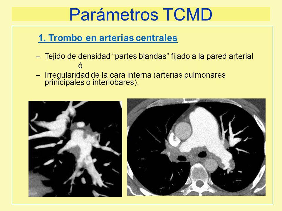 Parámetros TCMD –Tejido de densidad partes blandas fijado a la pared arterial ó –Irregularidad de la cara interna (arterias pulmonares prinicipales o