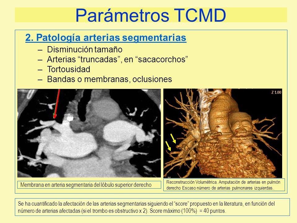 Parámetros TCMD –Disminución tamaño –Arterias truncadas, en sacacorchos –Tortousidad –Bandas o membranas, oclusiones 2. Patología arterias segmentaria
