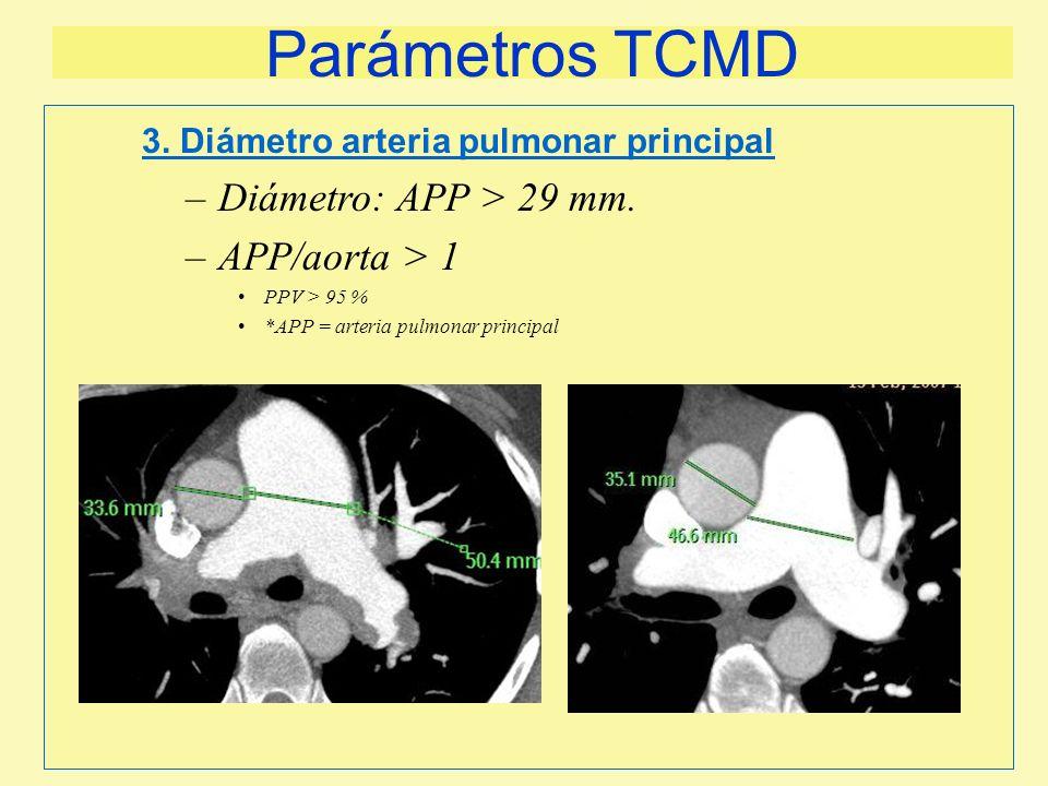 Parámetros TCMD –Diámetro: APP > 29 mm. –APP/aorta > 1 PPV > 95 % *APP = arteria pulmonar principal 3. Diámetro arteria pulmonar principal