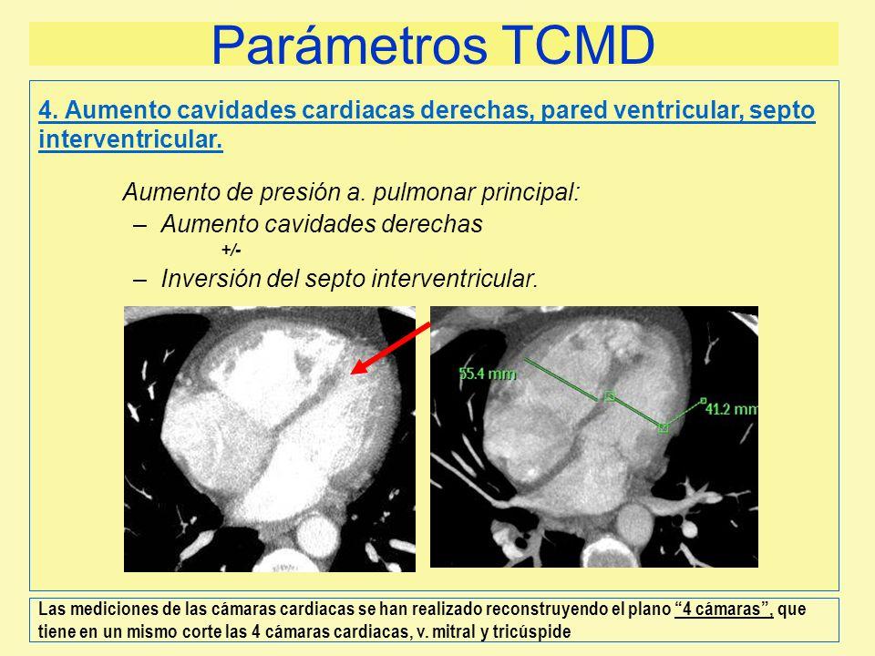 Parámetros TCMD Aumento de presión a. pulmonar principal: –Aumento cavidades derechas +/- –Inversión del septo interventricular. 4. Aumento cavidades