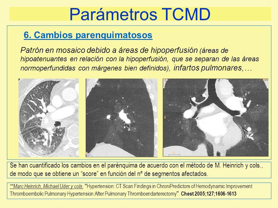Parámetros TCMD Patrón en mosaico debido a áreas de hipoperfusión (áreas de hipoatenuantes en relación con la hipoperfusión, que se separan de las áre