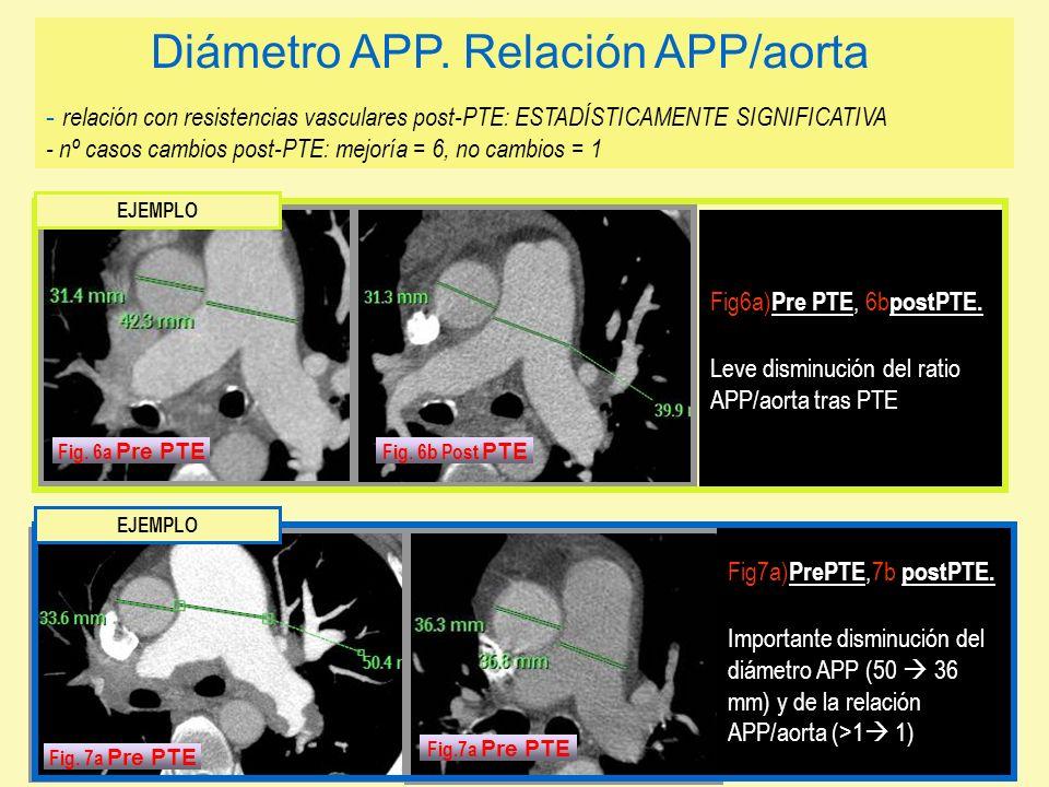 Fig7a) PrePTE,7b postPTE. Importante disminución del diámetro APP (50 36 mm) y de la relación APP/aorta (>1 1) Fig6a) Pre PTE, 6b postPTE. Leve dismin